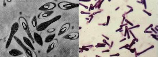 Морфология маслянокислых бактерии и спор Clostridium butyricum