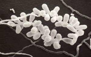 Органы плодоношения Trichothecium roseum