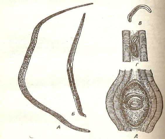 Трихинелла
