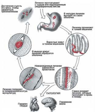 Биологический цикл развития трихинеллы