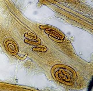 Личинки трихинелл в мышцах свиньи