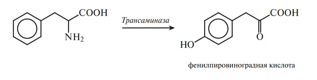фенилпировиноградная кислота